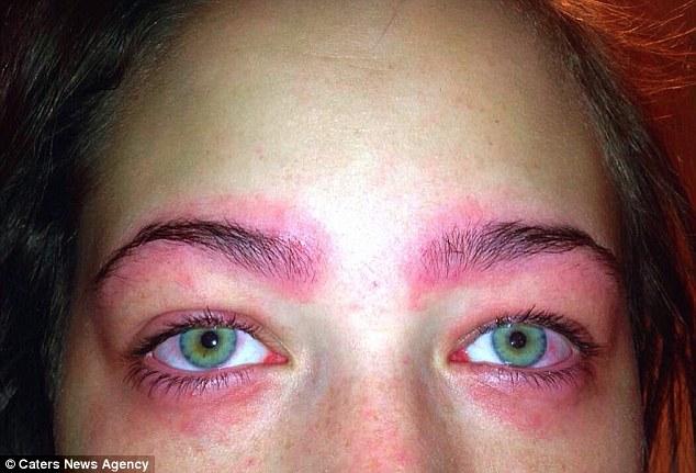 Cảnh báo: Làm đẹp lông mày và lông mi với thuốc nhuộm, cô gái trẻ suýt mù cả hai mắt - Ảnh 4.