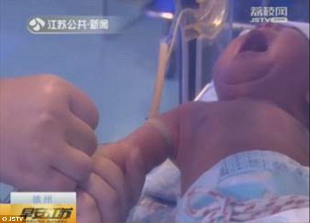 Bé sơ sinh suýt bị hoại tử ngón tay chỉ vì một sợi tóc mỏng manh của mẹ - Ảnh 4.