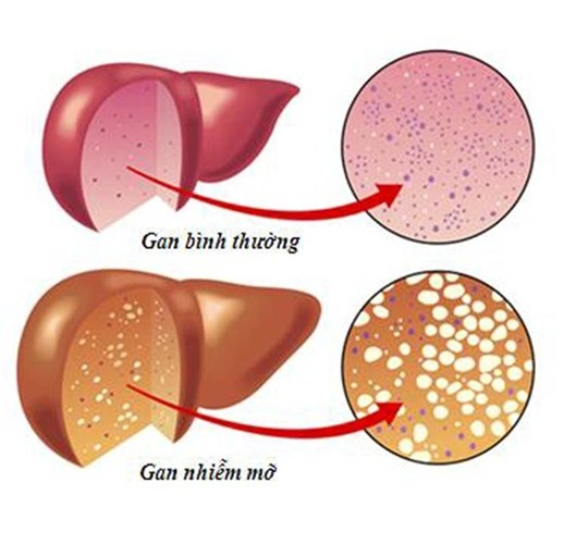 10 nguy cơ và dấu hiệu bệnh gan - Ảnh 1.