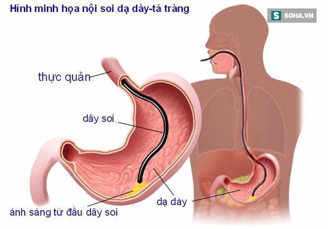 4 loại tổn thương dạ dày phổ biến có thể tiến triển thành khối u ác tính: Hãy biết sớm! - Ảnh 3.