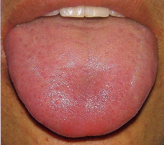 Quốc y đại sư Trung Quốc: Cơ thể dư thừa độ ẩm là nguyên nhân gây ra nhiều loại bệnh - Ảnh 3.