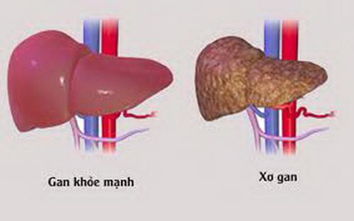 12 bài thuốc trị bệnh gan do rượu - Ảnh 1.