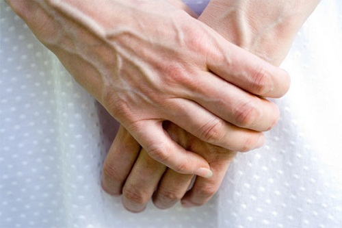 Nổi tĩnh mạch trên cơ thể là dấu hiệu bệnh gì? Đây chính là những gợi ý giúp bạn nhận biết - Ảnh 1.