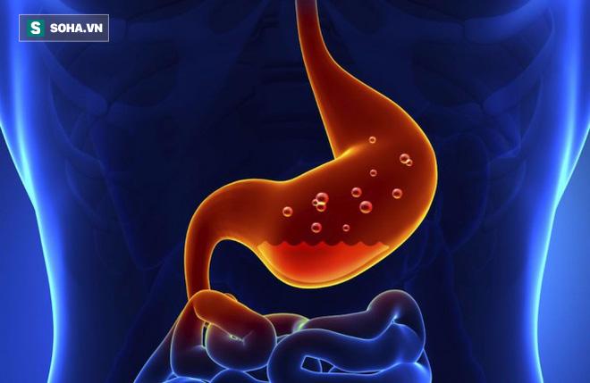 3 lời khuyên vàng dành cho người đau dạ dày để chủ động phòng tránh ung thư - Ảnh 1.