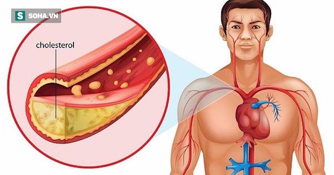 Nếu có tỉ lệ chất này trong cơ thể cao, bạn có nguy cơ cao bị đột quỵ, nhồi máu cơ tim - Ảnh 2.