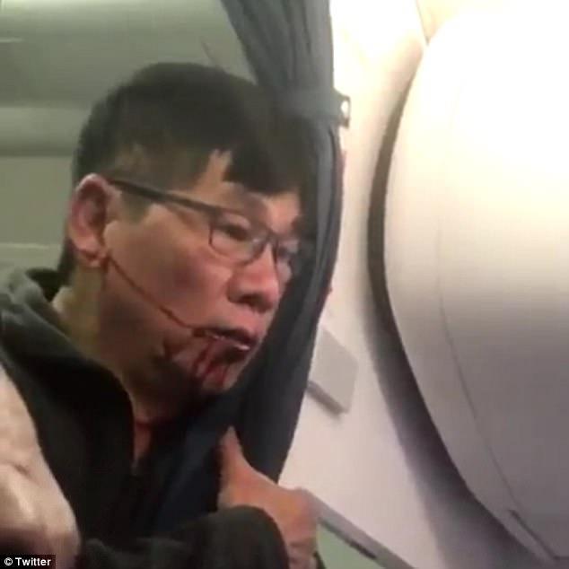 Xác nhận bác sĩ châu Á bị lôi khỏi máy bay United Airlines là người gốc Việt - Ảnh 1.