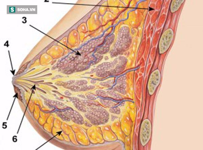 Cảnh báo của Giám đốc BV K trung ương: Khi có dấu hiệu sau, 80% là đã mắc ung thư vú - Ảnh 1.