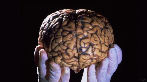 Người đàn ông không có não mà vẫn sống, trở thành lời thách thức đối với toàn bộ giới khoa học - Ảnh 2.