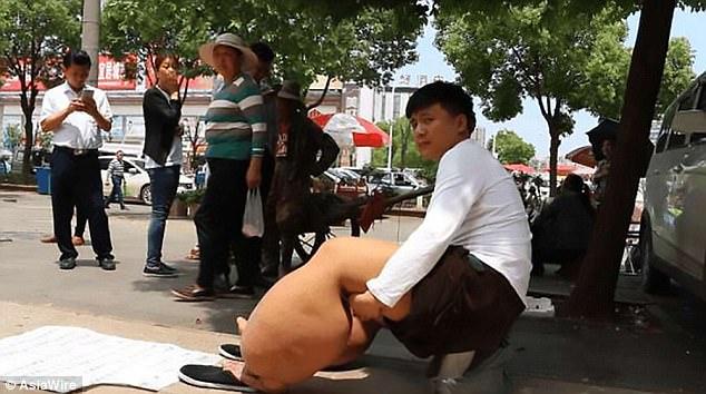 Người đàn ông có đôi chân nặng 150kg chỉ vì một vết muỗi đốt - Ảnh 2.