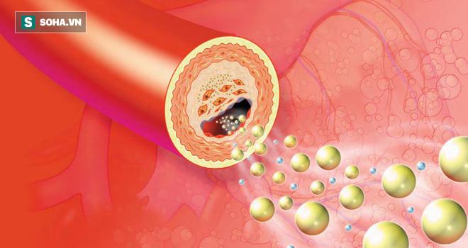 Bài thuốc quý chữa bệnh cao huyết áp, mỡ máu kỳ diệu chỉ từ 2 nguyên liệu có sẵn trong bếp - Ảnh 4.