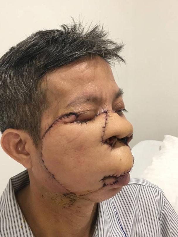 Tái tạo khuôn mặt cho người đàn ông ung thư da 10 năm không dám ăn cơm cùng con, cháu - Ảnh 2