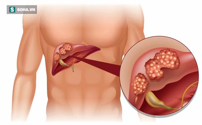 5 loại bệnh ung thư ở nam giới dễ nhầm lẫn, nhanh tử vong: Đừng để quá muộn mới chữa trị - Ảnh 6.