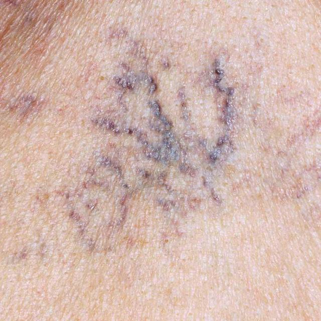 6 dấu hiệu cho thấy gan đang suy yếu: Nhận biết sớm để ngừa nguy cơ xơ gan, ung thư gan - Ảnh 2.