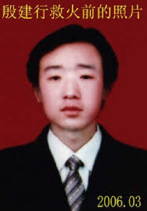 Cuộc sống phi thường của chàng trai bị biến dạng vì cứu 13 mạng người - Ảnh 1.