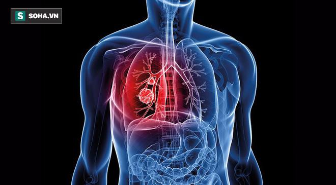 Gan, phổi, dạ dày nhiễm độc: Danh y chỉ các dấu hiệu và cách thải độc ai cũng nên bỏ túi - Ảnh 5.