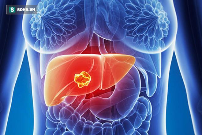 Chuyên gia hàng đầu BV Bạch Mai chỉ 4 nguyên nhân, 7 dấu hiệu ung thư gan không nên bỏ qua - Ảnh 2.