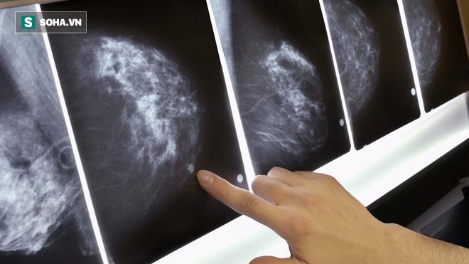 Mô bào đặc ở vú: Phụ nữ có càng nhiều, nguy cơ ung thư vú càng cao - Ảnh 1.