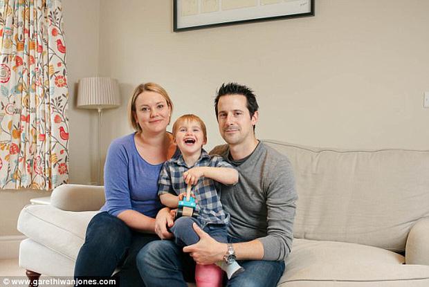 Đánh, ngã không bao giờ đau, gãy chân không khóc: Sự thật đằng sau cậu bé 3 tuổi này là gì? - Ảnh 1.