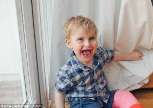 Đánh, ngã không bao giờ đau, gãy chân không khóc: Sự thật đằng sau cậu bé 3 tuổi này là gì? - Ảnh 2.