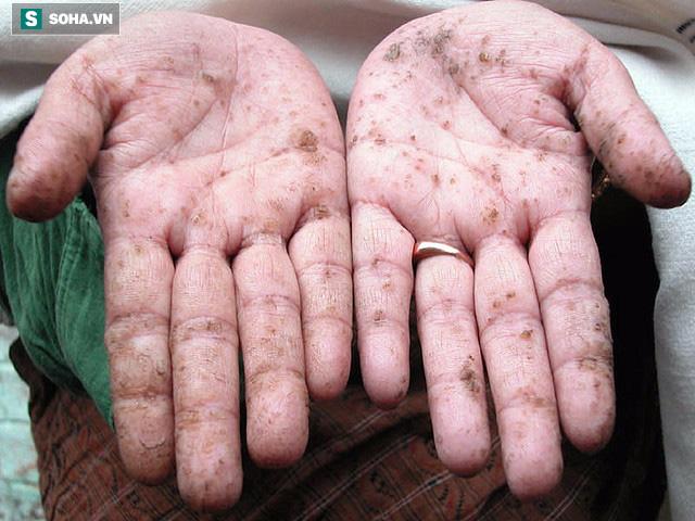 TS Mỹ chỉ rõ 6 dấu hiệu cơ thể nhiễm độc kim loại nặng và cách thải độc hiệu quả - Ảnh 3.