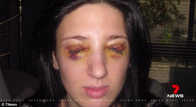Kỳ lạ: Người phụ nữ sống với chu kỳ 3 ngày nhắm mắt lại 3 ngày mở mắt liên tục - Ảnh 1.