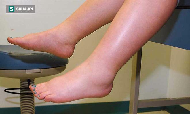 Nếu bàn chân có 6 dấu hiệu sau: Hãy cẩn thận sức khỏe của bạn có vấn đề - ảnh 2