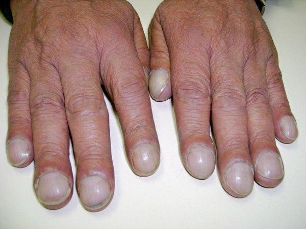 Những dấu hiệu ở móng chân, móng tay bạn nhất định phải để ý kẻo mang bệnh không biết - Ảnh 2.