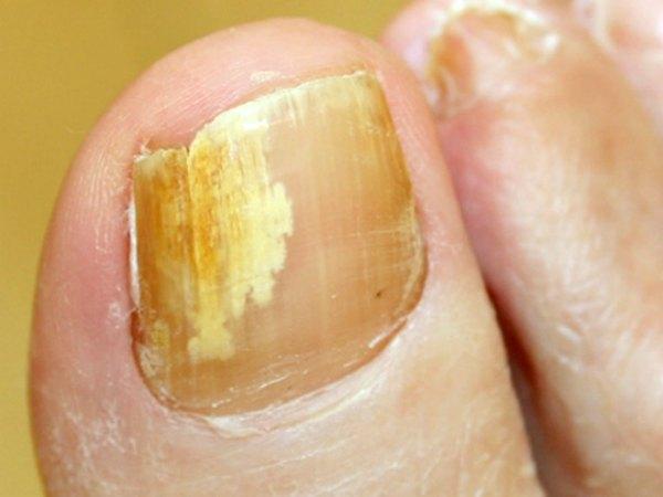 Những dấu hiệu ở móng chân, móng tay bạn nhất định phải để ý kẻo mang bệnh không biết - Ảnh 3.