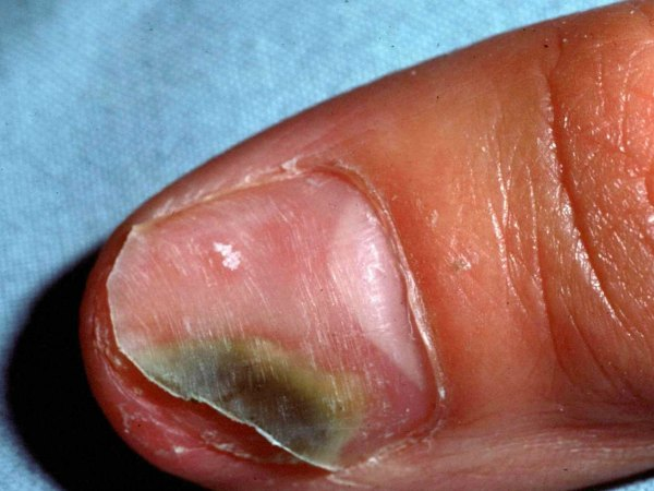 Những dấu hiệu ở móng chân, móng tay bạn nhất định phải để ý kẻo mang bệnh không biết - Ảnh 5.