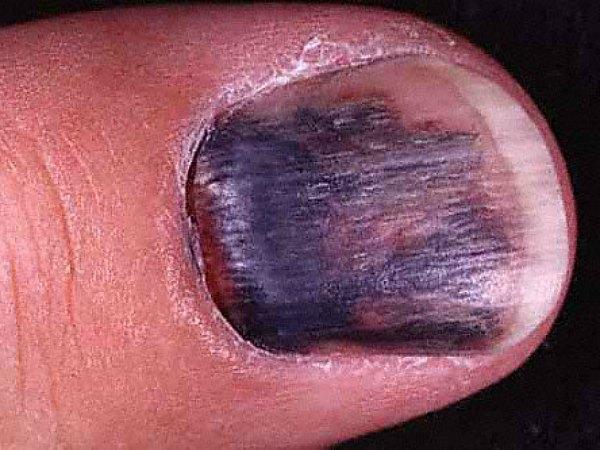 Những dấu hiệu ở móng chân, móng tay bạn nhất định phải để ý kẻo mang bệnh không biết - Ảnh 6.