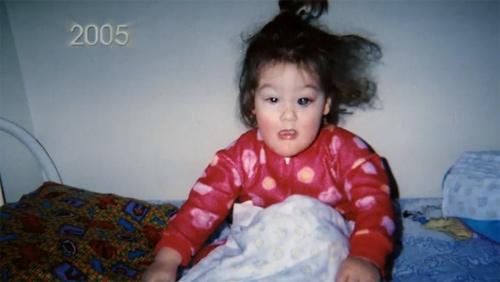 Nhai lưỡi và tự cào mù cả mắt, cuộc sống đầy rẫy hiểm họa với bé gái bị mắc phải bệnh hiếm - Ảnh 2.