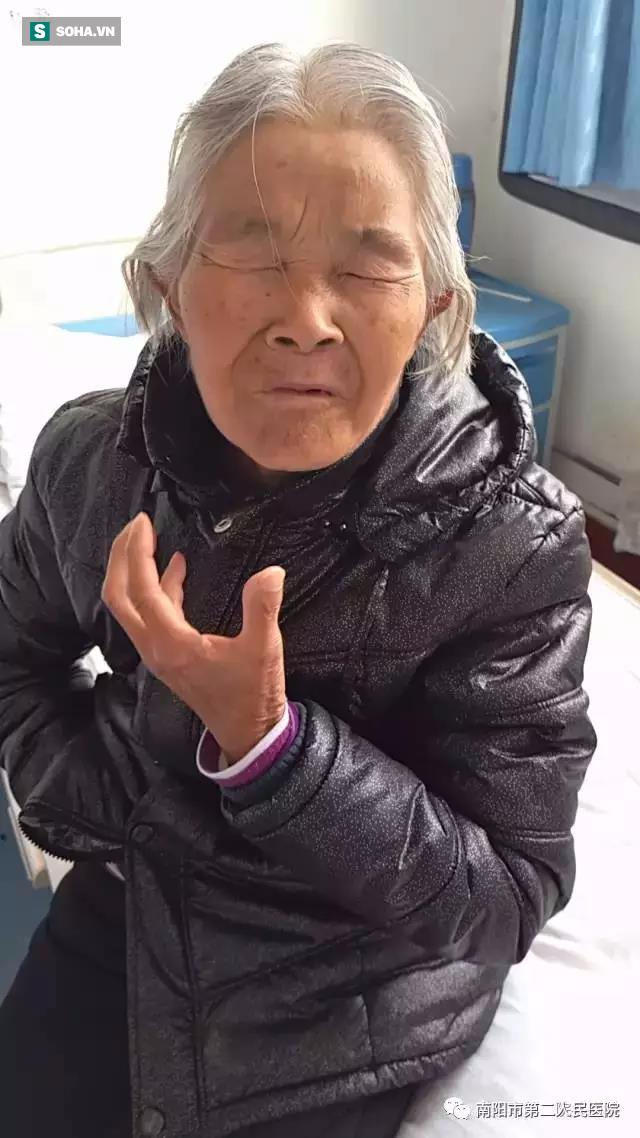 Người phụ nữ 10 năm không dám cười do mắc bệnh đau dây thần kinh sinh ba - Ảnh 2.