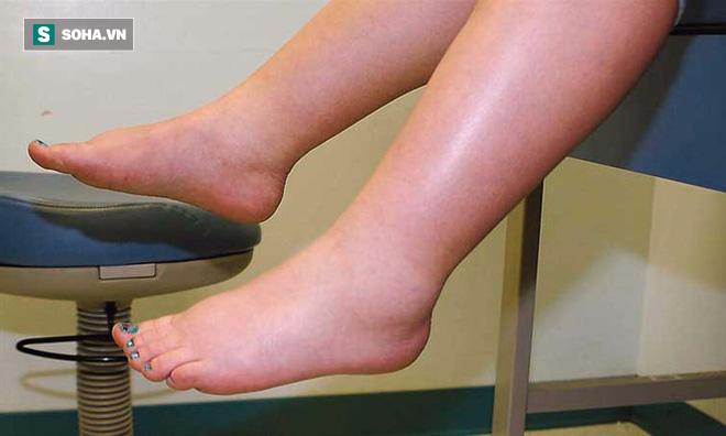 TS Mỹ chỉ rõ 7 dấu hiệu nhận biết sớm nhất nguy cơ gan bị tổn thương bạn không thể bỏ qua - Ảnh 4.