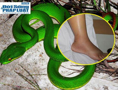 Cách xử lý bị rắn cắn mà bạn cần biết