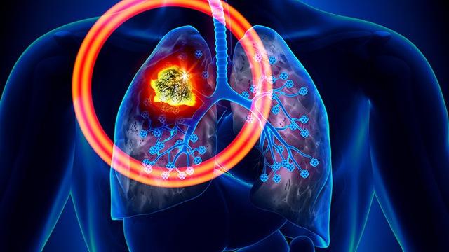 Bé trai 2 tuổi bị ung thư phổi: Liệu chúng ta có quá chậm chân trong việc phòng bệnh? - Ảnh 2.