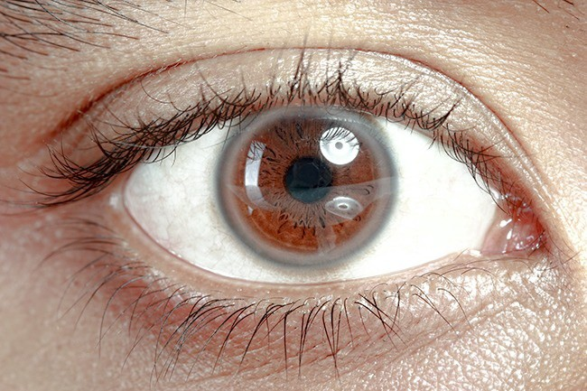 Có thể bị mù vĩnh viễn nếu mắt có dấu hiệu này mà mặc kệ không đi khám - Ảnh 1.