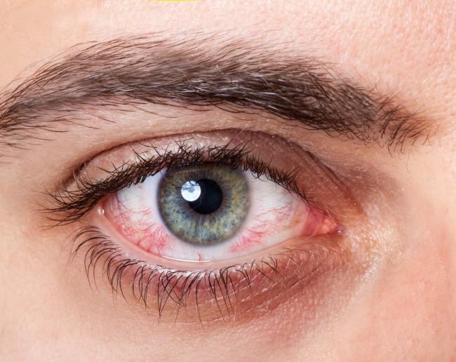 Có thể bị mù vĩnh viễn nếu mắt có dấu hiệu này mà mặc kệ không đi khám - Ảnh 2.