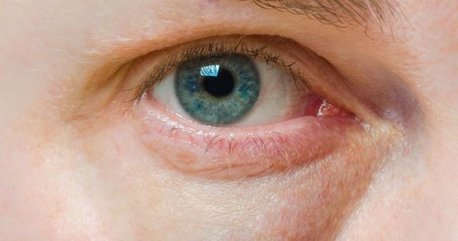 Có thể bị mù vĩnh viễn nếu mắt có dấu hiệu này mà mặc kệ không đi khám - Ảnh 5.