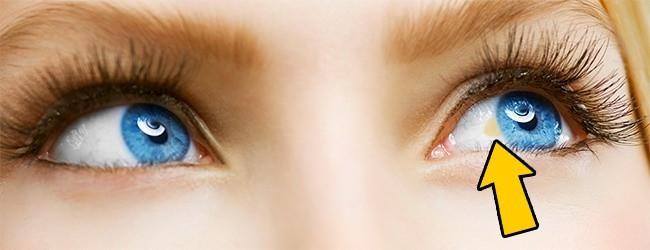 Có thể bị mù vĩnh viễn nếu mắt có dấu hiệu này mà mặc kệ không đi khám - Ảnh 6.