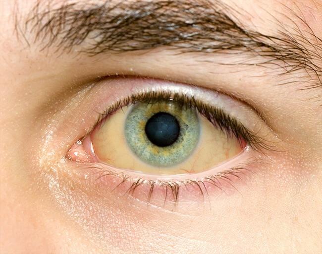 Có thể bị mù vĩnh viễn nếu mắt có dấu hiệu này mà mặc kệ không đi khám - Ảnh 10.