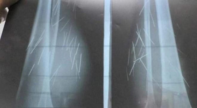 Chụp X-quang, bác sĩ phát hiện nhiều vật lạ trong chân cô gái và không thể tin nổi khi lấy ra - Ảnh 2.