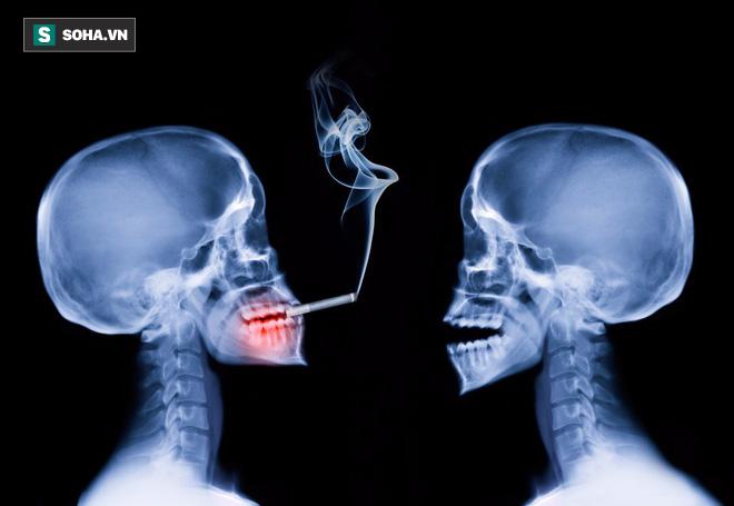 Trả lời 5 câu hỏi sau để biết bạn có nguy cơ mắc ung thư miệng hay không? - Ảnh 1.