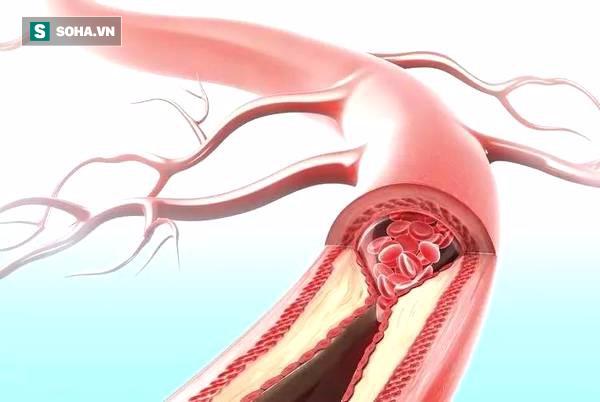 6 hành vi khiến mạch máu tắc nhanh hơn, nhiều người vô tư làm hàng ngày mà không biết - Ảnh 1.