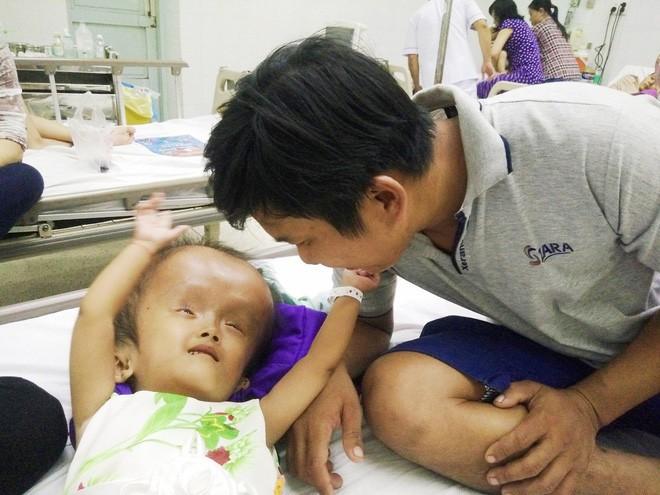 Xót cảnh bé gái 4 tuổi bị não úng thủy, đầu to gấp ba lần người thường mà bố mẹ nghèo không tiền chạy chữa - Ảnh 12.