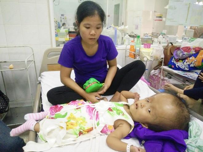 Xót cảnh bé gái 4 tuổi bị não úng thủy, đầu to gấp ba lần người thường mà bố mẹ nghèo không tiền chạy chữa - Ảnh 13.