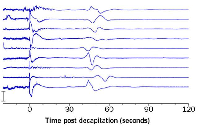 Các nhà khoa học đau đầu không hiểu chuyện gì xảy ra: Não của người chết vẫn hoạt động 10 phút sau khi tim ngừng đập - Ảnh 2.