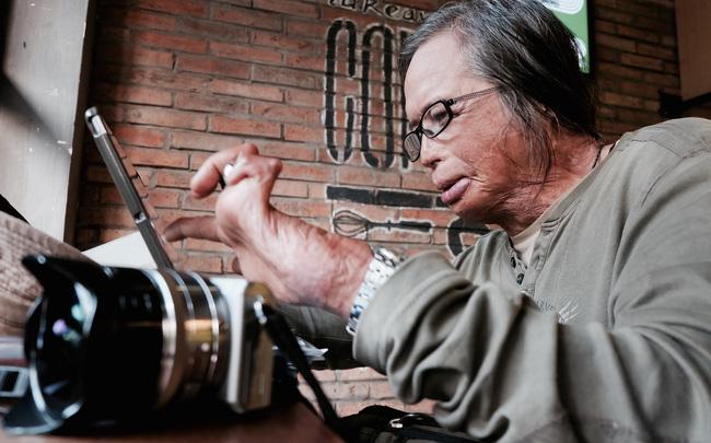 Chuyện của nhiếp ảnh gia 60 tuổi ở Sài Gòn được tái sinh sau 17 ca phẫu thuật vì bỏng lửa - Ảnh 3.