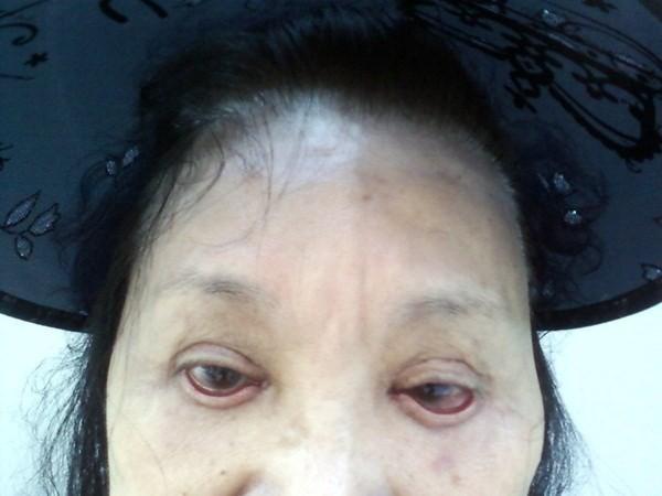 Biến chứng của phẫu thuật cắt mí mắt, chị em đang có ý định làm cần lưu ý những gì? - Ảnh 2.