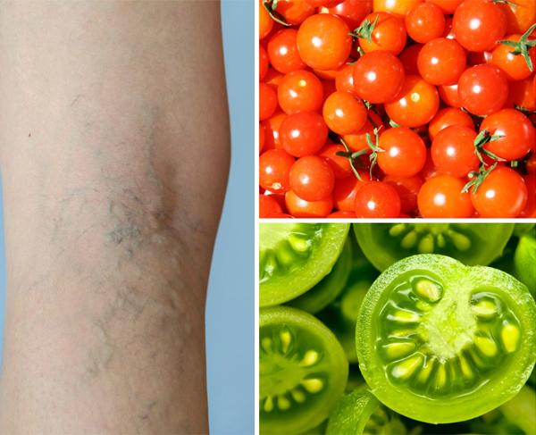 Sử dụng cà chua theo cách này sẽ chữa khỏi suy giãn tĩnh mạch trong thời gian ngắn - Ảnh 4.