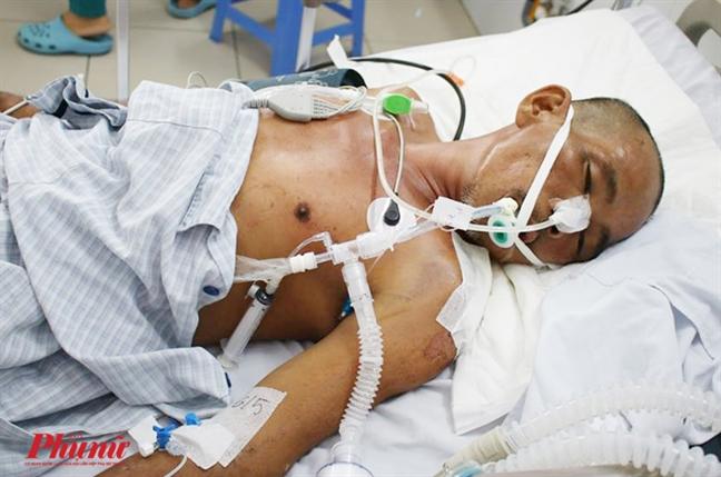 Bác sĩ đoán chết 100%, người đàn ông ở TP.HCM bất ngờ sống lại - ảnh 4